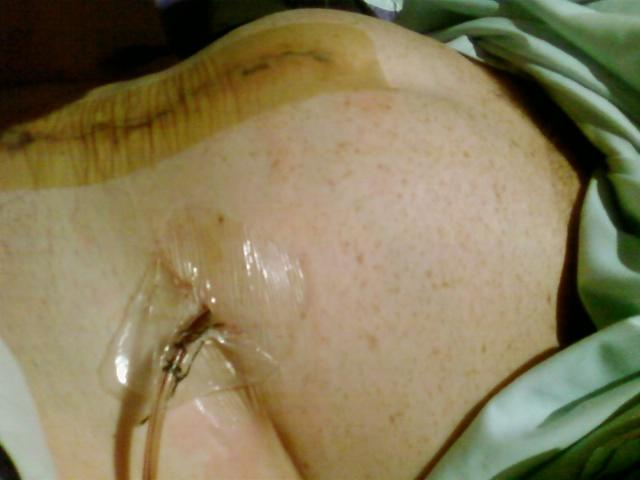 draining tube and blown up bladder
